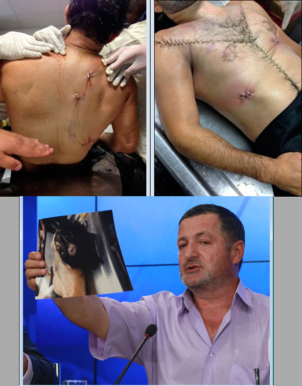Ibragim Todashev's body showing the bullet wounds, and his father at a press conference in Russia